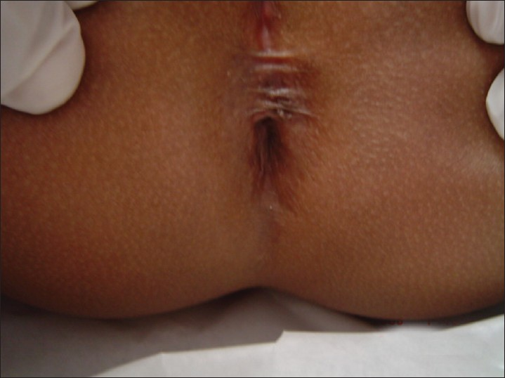 Anus continence imperforated
