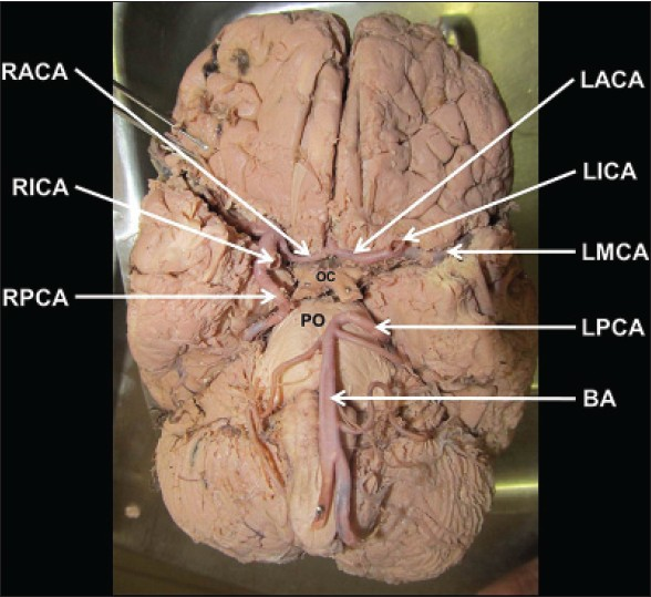 Incomplete Circle Of Willis Due To The Bilateral Abnormal Origin Of