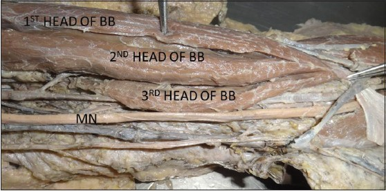 A morphological study of third head of biceps brachii in ...