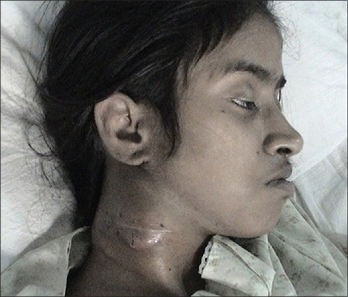 Figure 1: Patient at presentation having right-sided neck swelling with overlying scar of surgery and right-sided ptosis