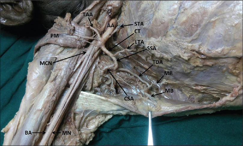 A Rare Variation In The Branching Pattern Of Axillary Artery Akhtar